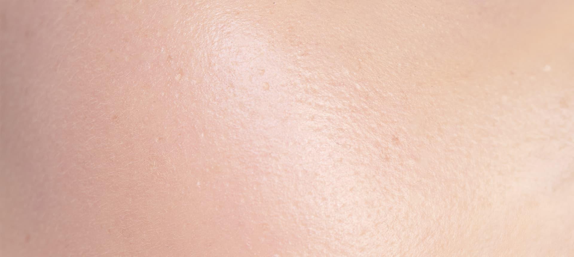 Impactos del exposoma:Efectos en la piel