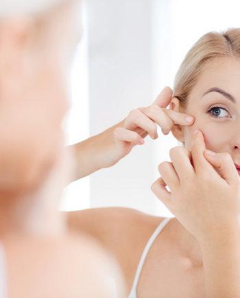 Acné hormonal: ¿de qué se trata?
