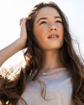 Pecas y quemaduras solares: ¿cómo proteger tu piel?