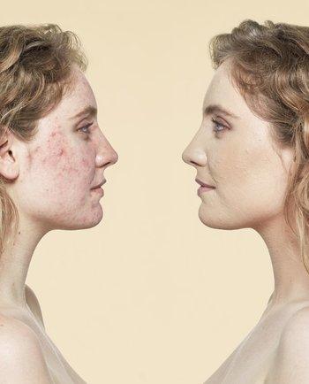 Rosácea: cómo aplicar la base en la piel enrojecida
